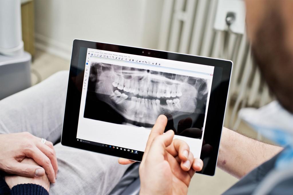 Zähne, Röntgen